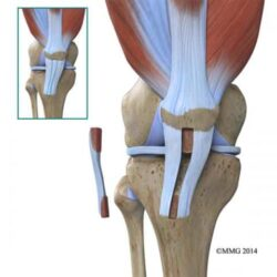 Πρόσθιος-Χιαστός-Σύνδεσμος-acl-tears-patellar-tendon-graft