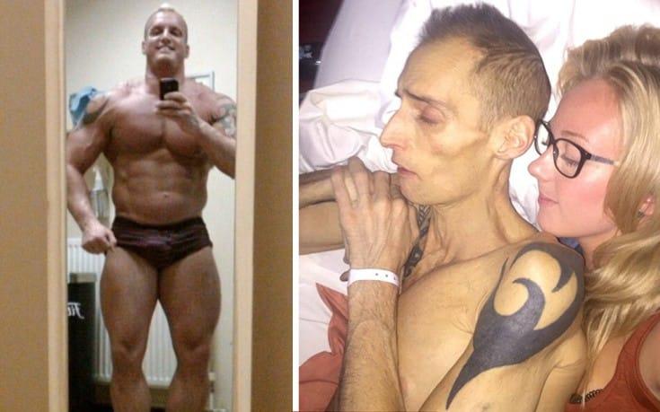 Ο bodybuilder, τα αναβολικά και ο θάνατος από καρκίνο στο ήπαρ